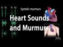 Heart Sounds and Heart Murmurs.