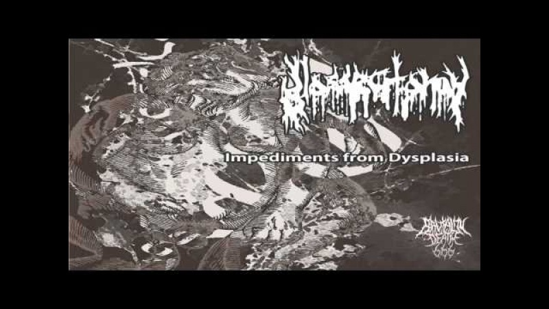 Glossectomy - Impediments From Dysplasia (2014) {Full-EP}