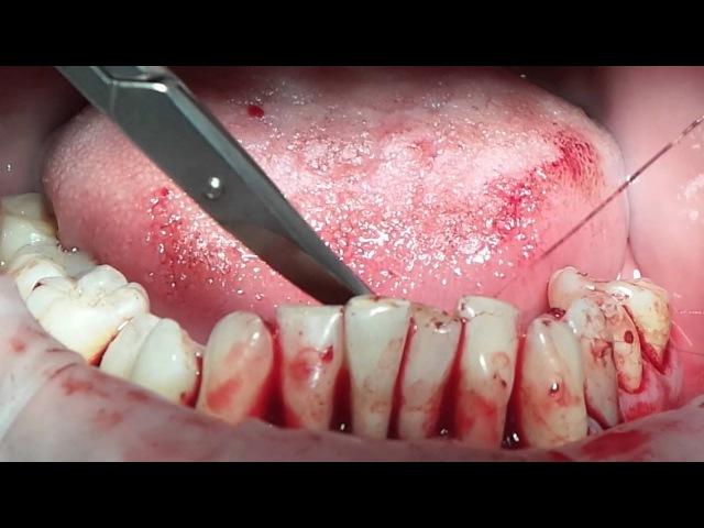 24 May. Mariia Nosova. Splinting and Periodontal Surgery. Part 5