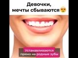 Perfect Smile Veneers!