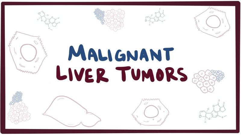 Malignant liver tumors - causes, symptoms, diagnosis, treatment pathology