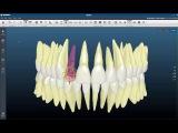 Индивидуальная брекет-система по 3D-технологии Insignia. США.