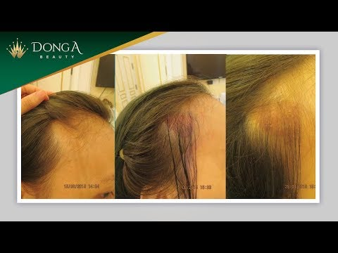 Hình ảnh khách hàng cấy tóc sinh học BioFibre thành công tại Đông Á