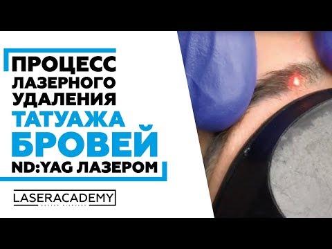 Удаление татуажа бровей Nd:YAG лазером удалениетатуажа удалениетату