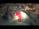 Инновационный метод овариогистерэктомии у пациента с новообразованием тела матки. Доступ с остеотомией таза