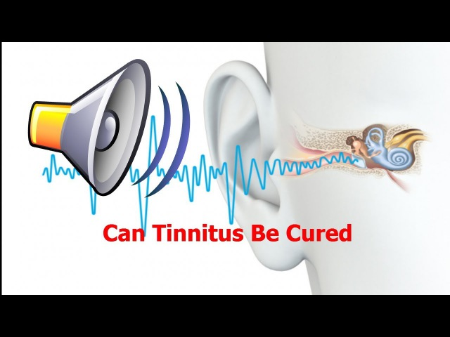 Can Tinnitus Be Cured Ringing In Your Ears Loud Ringing In My Ears Frequent Ringing In Ears
