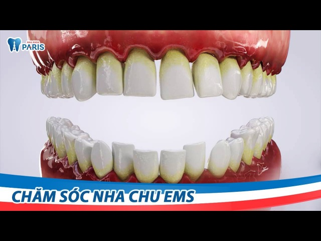 Chăm sóc nha chu (Lấy cao răng) EMS | Nha khoa Paris