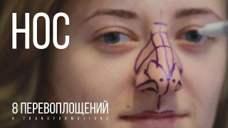 Уменьшение САМОГО длинного носа. КАТЯ - Rhinoplasty for the longest nose