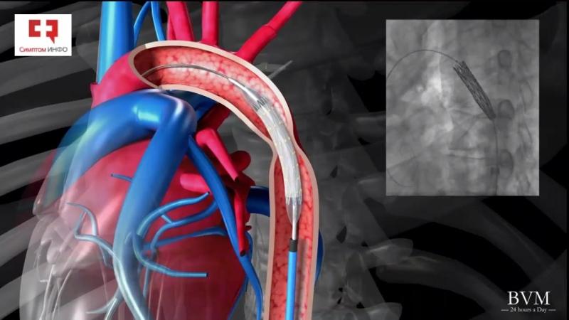 Коарктация аорты_ операция стентирования стент-графтом или эндопротезирования