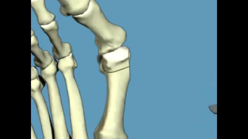 Анимация Scarf остеотомия