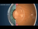 Dr Garth Webb - The Bionic Lens and the human visual experience