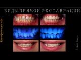 Вебинар Ксении Лазаревой HD - Биомиметическая концепция в прямой реставрации.