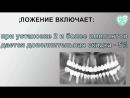 Импланты Ankylos на Красносельской
