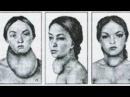 Увеличение щитовидки зоб удаление зоба © Diagnosis surgical treatment of goiter