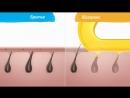 Сравнение бритья и шугаринга. Студия эпиляции Sugaring Room