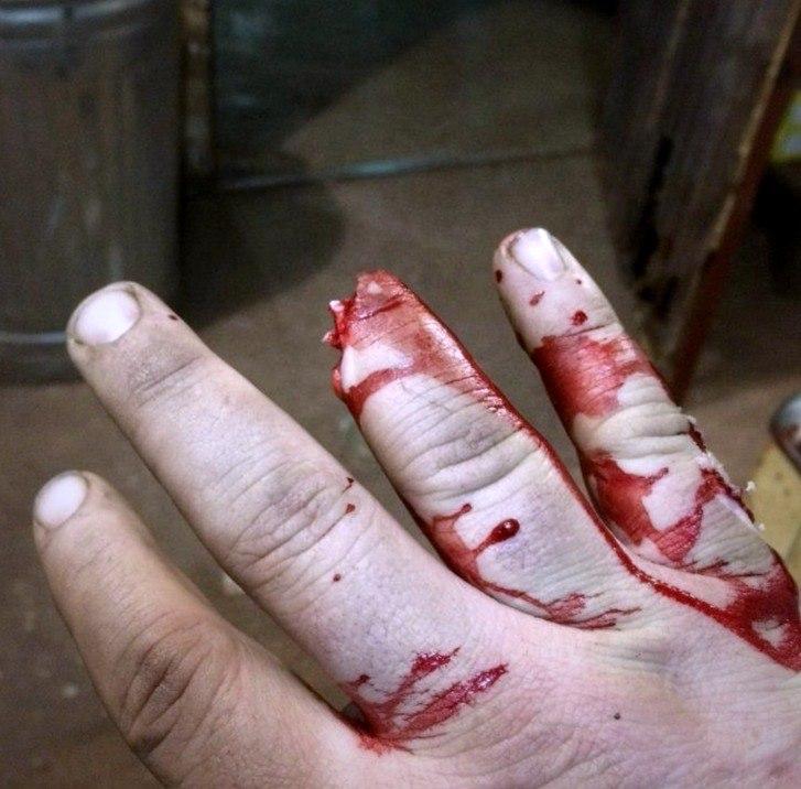 Отрезало палец