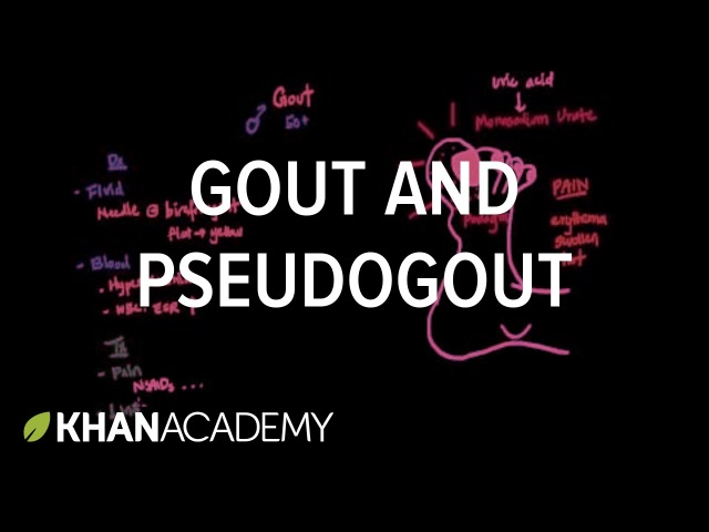 Gout and pseudogout | Muscular-skeletal diseases | NCLEX-RN | Khan Academy