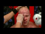 UFC FEDOR EMELIANENKO ALL LESIONS СПОРТ ВИДЕО тренировки федор емельяненко оффроуд
