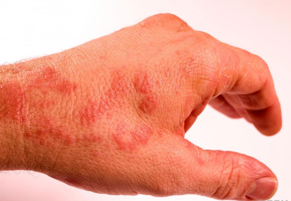 Некоторые люди страдают от дисгидротической экземы, которая вызывает сыпь, развивается на руках и сильно зудит.