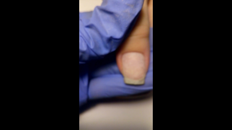 Трещины,сколы,сломы ноготков