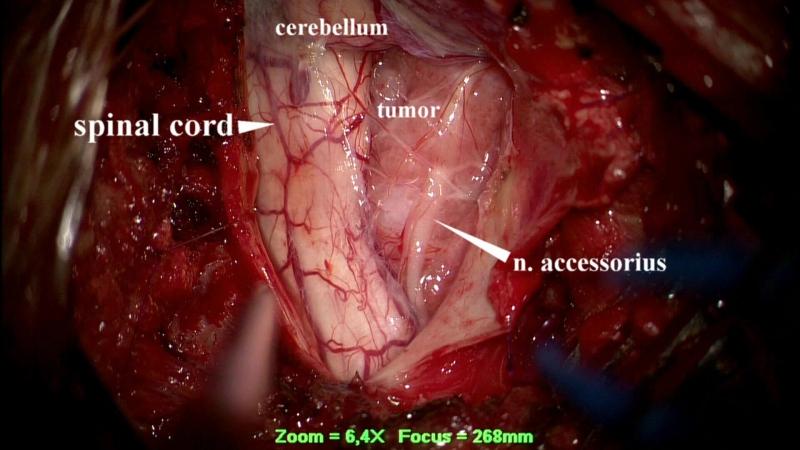 Удаление менингиомы большого затылочного отверстия 18