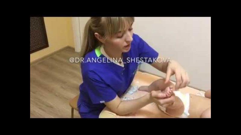 массаж для стопы, когда ребенок поджимает пальчики