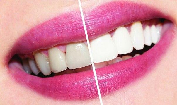 Отбеливание зубов рекомендации