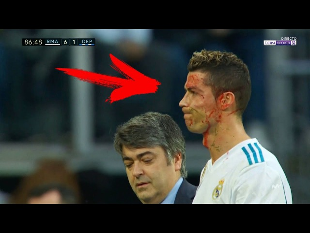 This is Why Cristiano Ronaldo SUPERHERO ● The Most Horror Tackles 2018 HD
