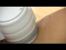 Доктор Борменталь Ультразвуковая липосакция кавитация