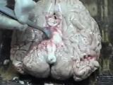 Обучающий фильм по аутопсии - Новый доктор