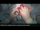 Резекция и анастомоз кишечника у кота Intestinal resection in cat
