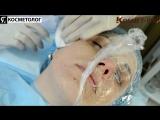 Биоревитализация лица, биоревитализация гиалуроновой кислотой, до и после, уколы красоты