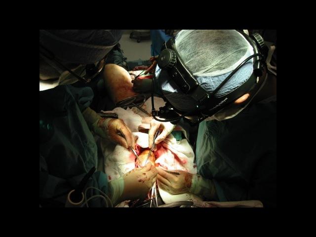 Протезирование Аортального Клапана / Aortic valve replacement