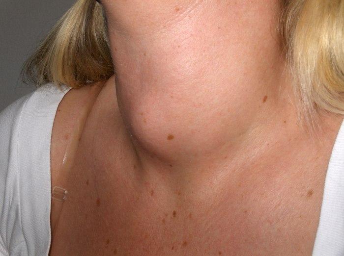 Проверить щитовидную железу
