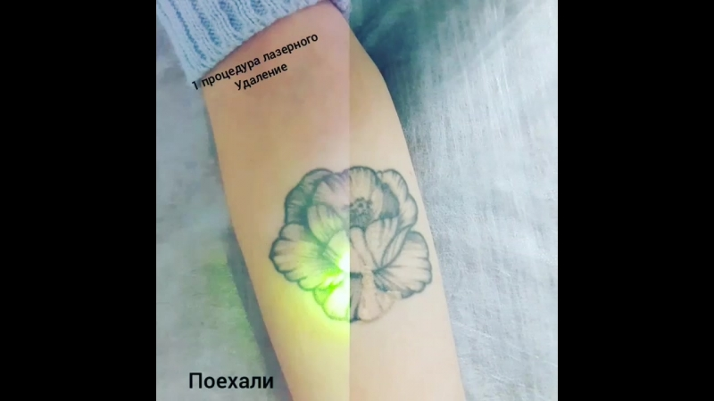 Лазерное удаление татуировки Цветок 1 процедура