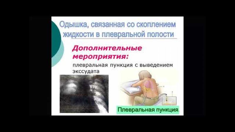 Сестринский уход при бронхитах, пневмонии, бронхиальной астме