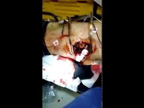 18 строго!! Бразильские врачи провели операцию в машине скорой помощи торакотомия ножевое ранение сердца кровотечение из правого желудочка шок ужас скорая помощь реанимация уникальное видео медики выжил! » Freewka.com - Смотреть онлайн в хорощем качестве