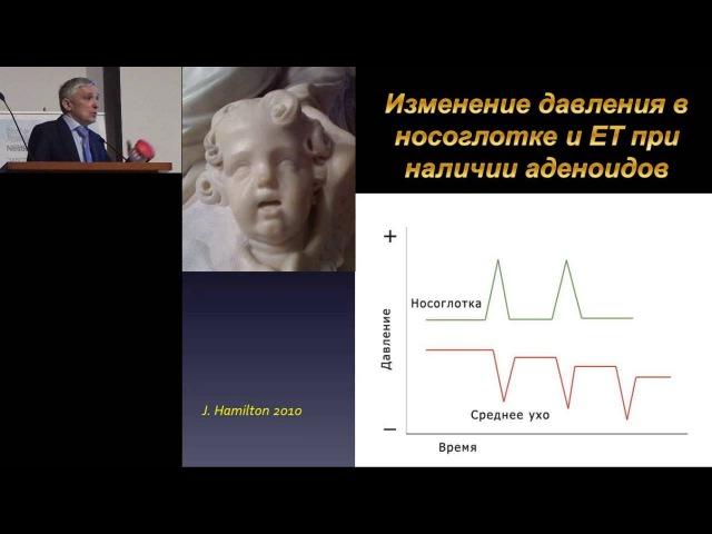 14.02.2016 - С.Я. Косяков. Отит: Оториноларингологи vs Педиатры