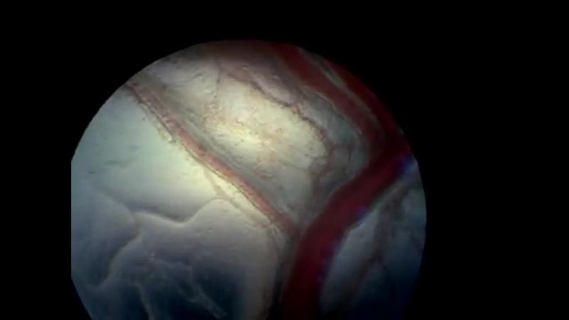 Микроциркуляция в сосудах брыжейки