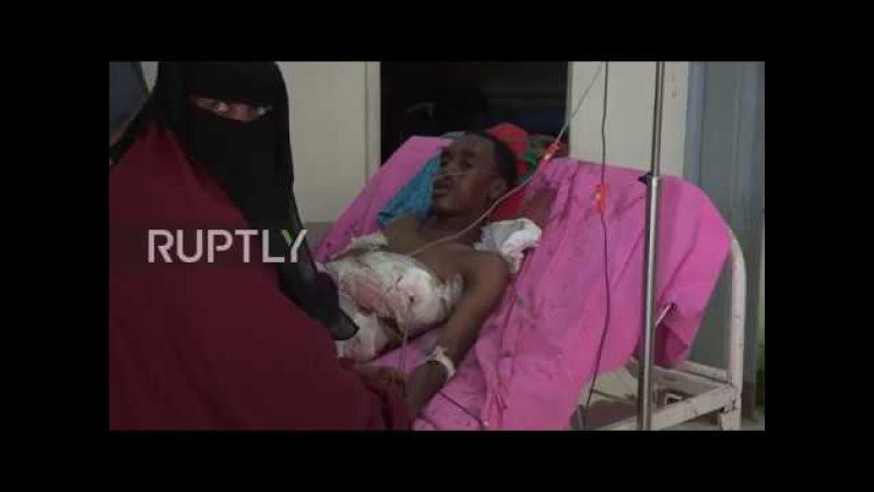 Somalia Survivors and doctors share harrowing details in wake of deadly Mogadishu blast
