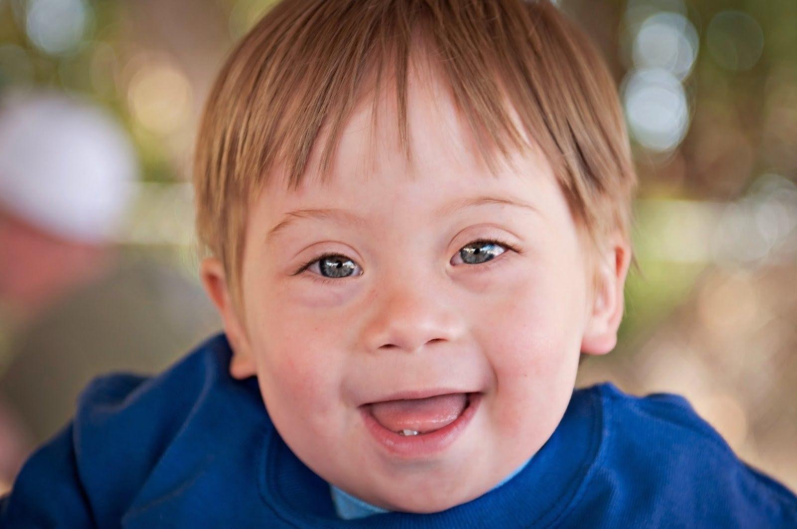 Мозаичный синдром дауна (фото)