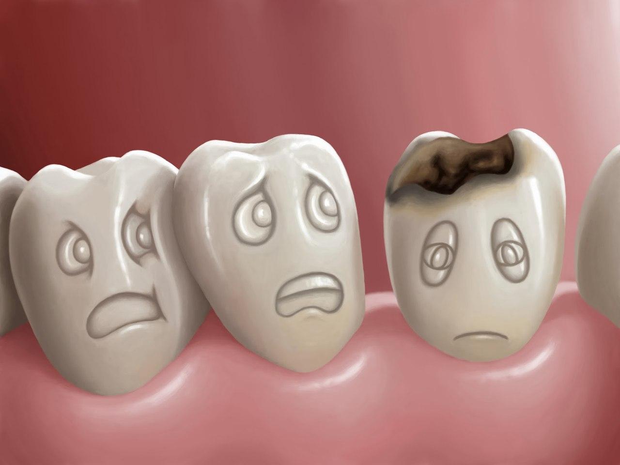 Истина о разрушении зубов или зубных кариесах