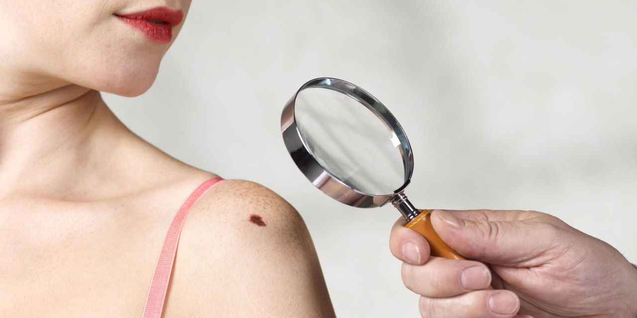 Первые симптомы рака кожи и начальная стадия карциномы
