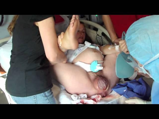 Sabrina fka jaime and Junos Vaginal birth after 3 C-sections vba3c