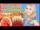 ¿Como Quitar el Sarro y La Placa de Los Dientes en Solo 5 Minutos? Que Un Dentista JAMÁS Te Dirá