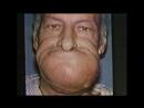 Развитие рака головы вследствие курения (лекарство что колят от зависимости к алкоголю)