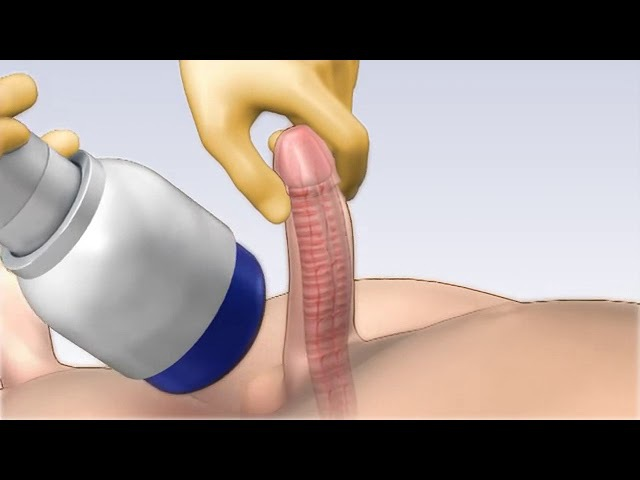 Shock Wave Treatment for Erectile Dysfunction