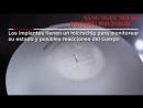 Thông tin về túi ngực Motiva Nanochip - 0941.29.82.82
