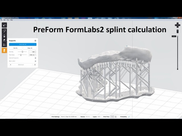PreForm FormLabs Form2 splint calculation