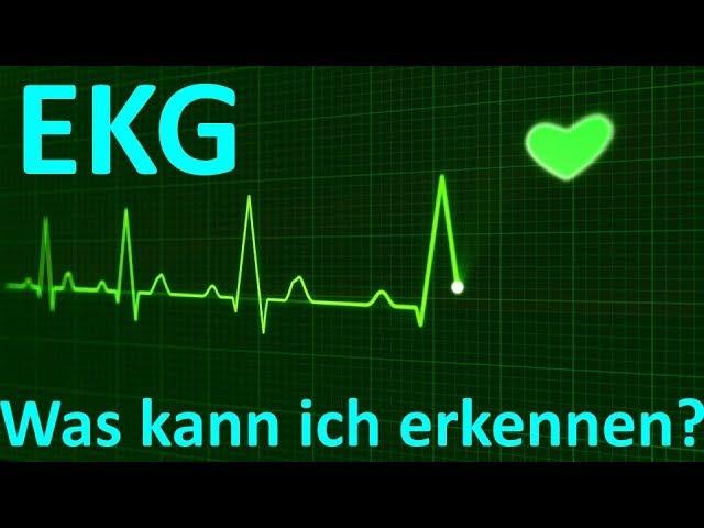 Was erkennt man beim EKG Monitoring (3-Kanal)